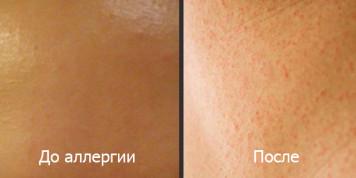 Фото начала аллергической реакции и после нее